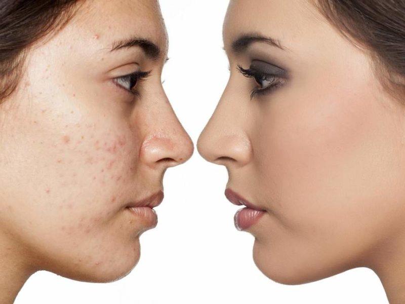 Microdermoabrasão para estrias: use o peeling de cristal para tratar essas marcas na pele